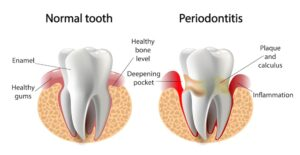 Periodontis Teeth